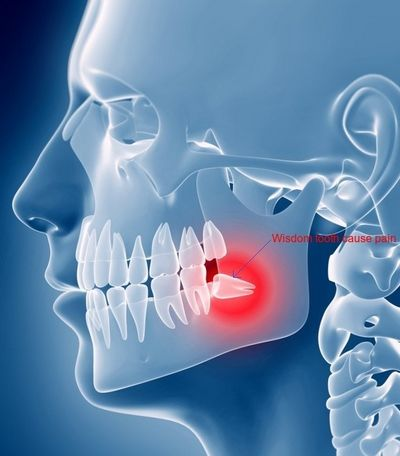 Dental Issues That Cause Wisdom Tooth Pain