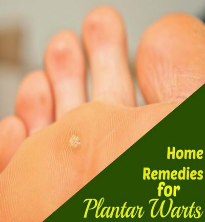 Effective Natural Remedies For Plantar Wart