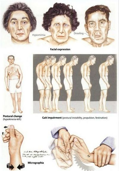How to Identify and Treat Parkinson's Symptoms