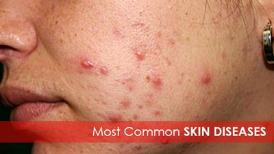 Learn About the Most Common Skin Diseases
