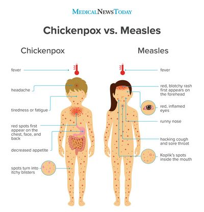 Measles Symptoms and How to Recognize Them