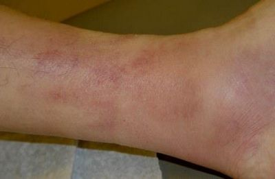 Thrombophlebitis - What Is Thrombophlebitis and How Is It Treated?