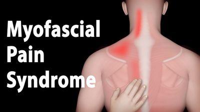 Treatment of Myofascial Pain
