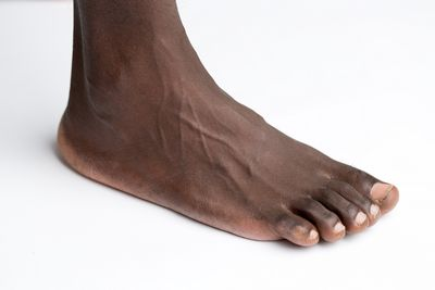 Which Type of Flat Foot Treatment Is Right For You?